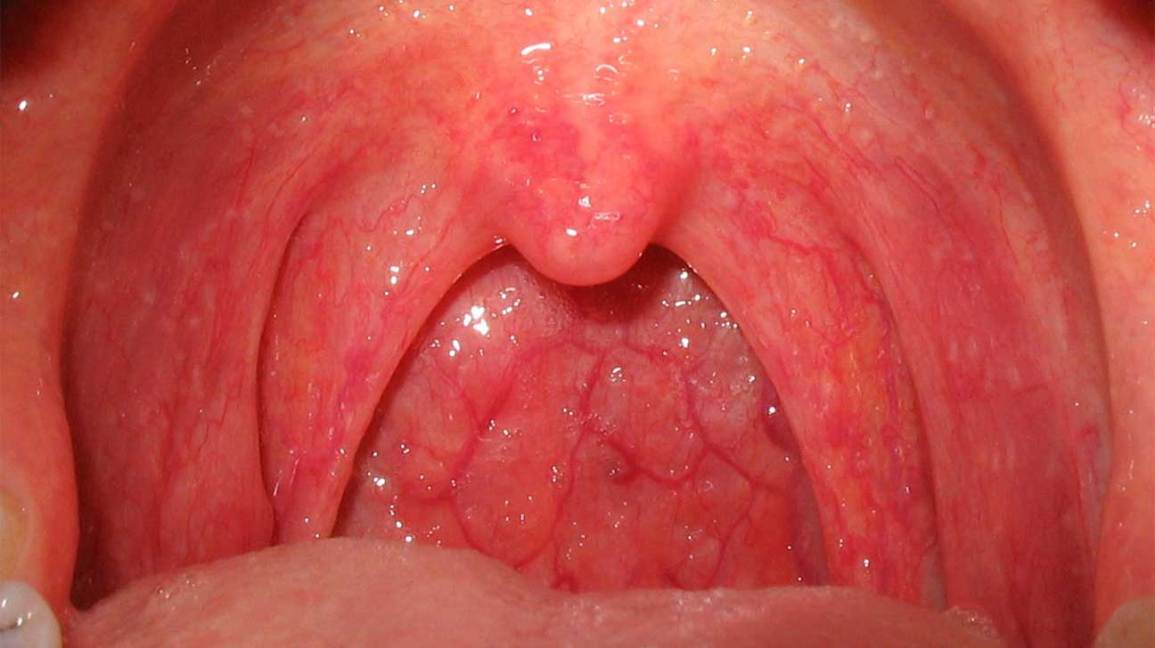 hpv mouth throat gastric cancer prevalence