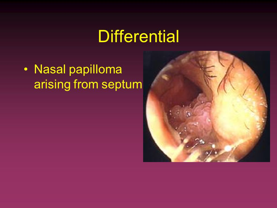 squamous papilloma of the nasal septum)