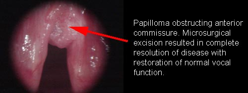 respiratory papillomatosis how to treat