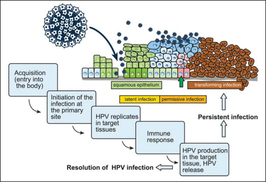 Human papillomavirus infection etiology and pathogenesis,