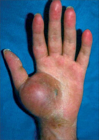 sarcoma cancer in hand)