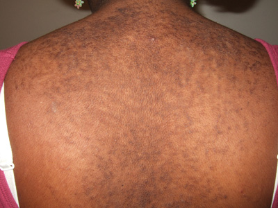 confluent and reticulated papillomatosis cure