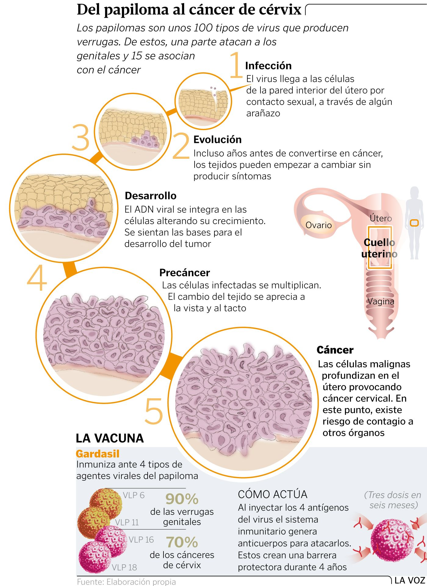 papiloma y cancer)