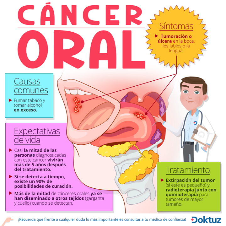 cancer bucal quimioterapia