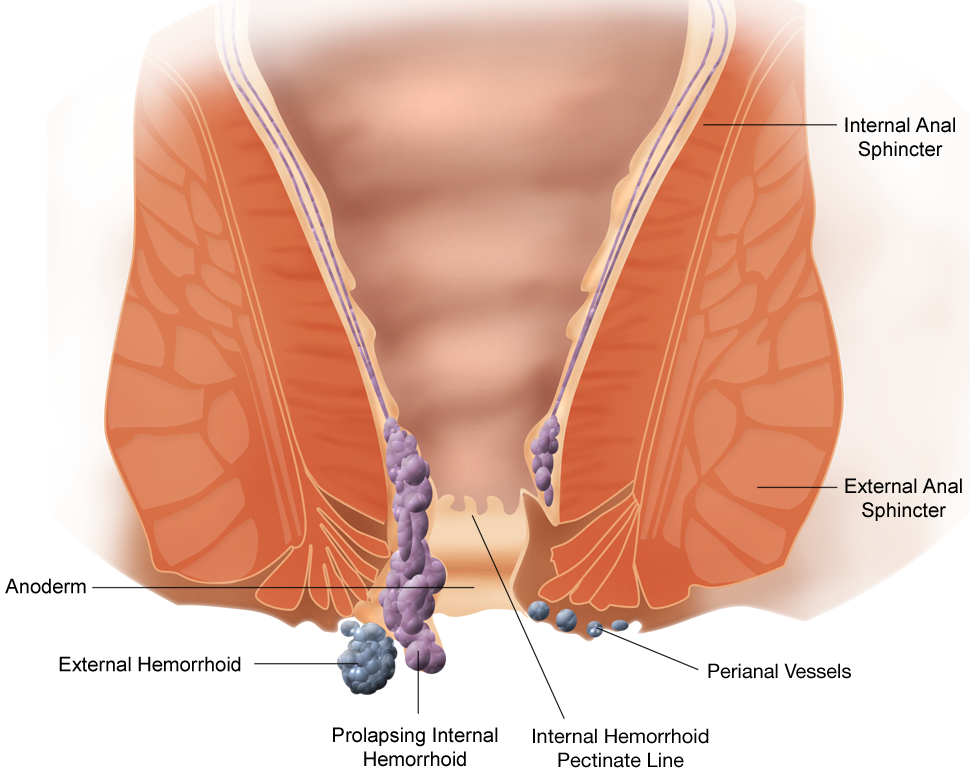 Testicular cancer treatment stage 3