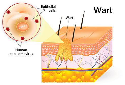wart virus in blood familial cancer definition biology