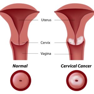 hpv head and neck cancer)
