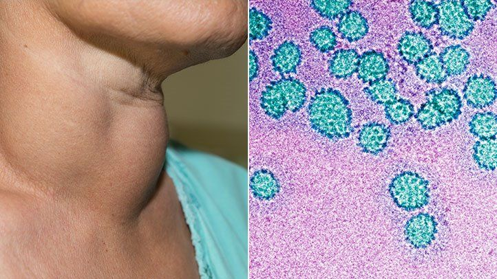 HPV - virusul care declanseaza si cancerul oral - Hpv virus and mouth cancer