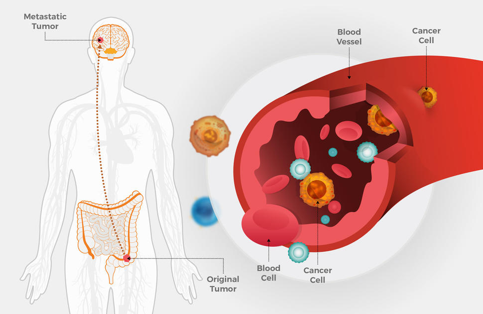 metastatic cancer detection