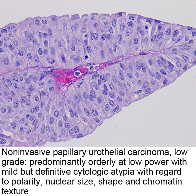 papillary urothelial mean