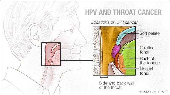 hpv swollen neck lymph nodes