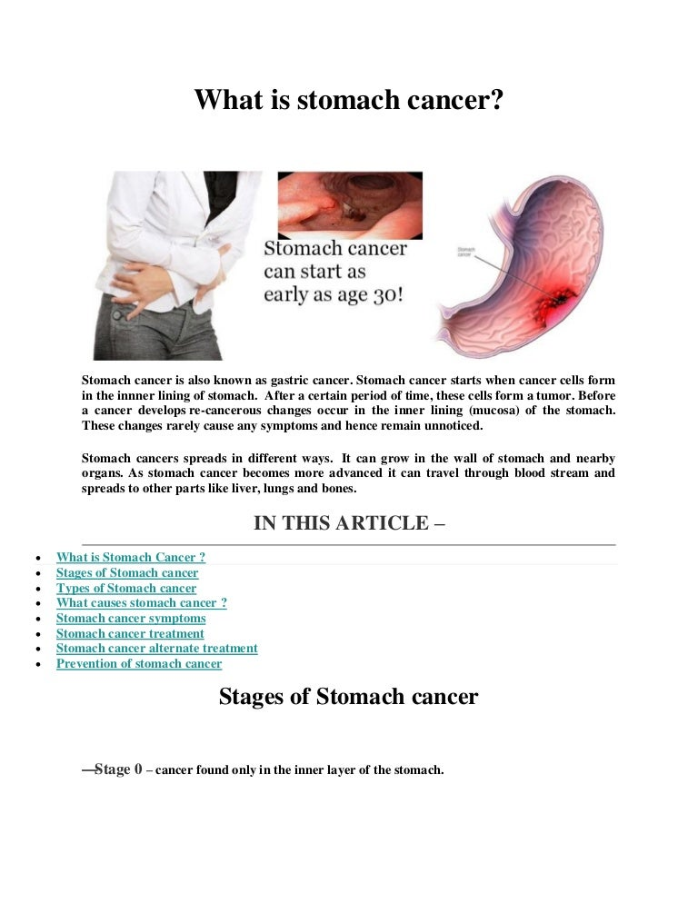 gastric cancer causes)