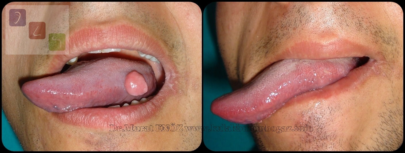 papilloma on tongue tip