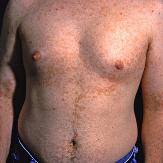 reticulated papillomatosis herpes hpv difference