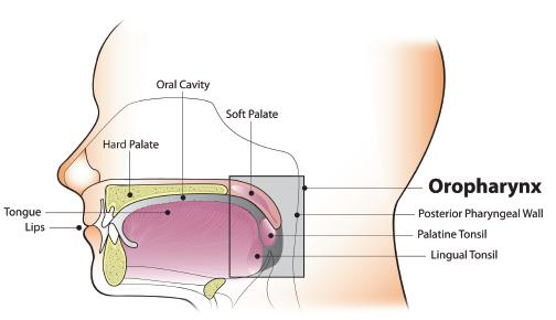 human papillomavirus infection and oropharyngeal cancer)