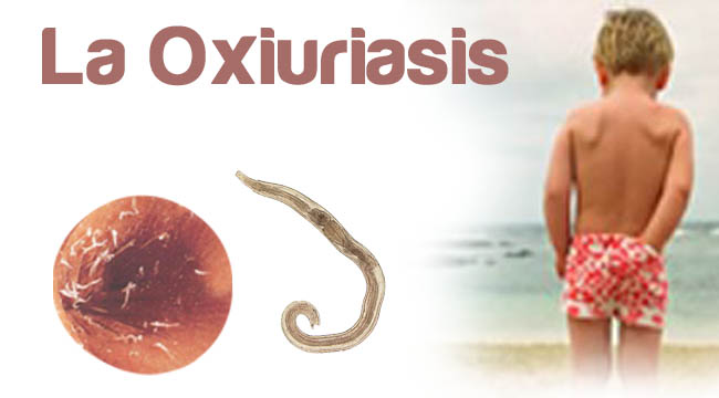 oxiuriasis of enterobiasis)