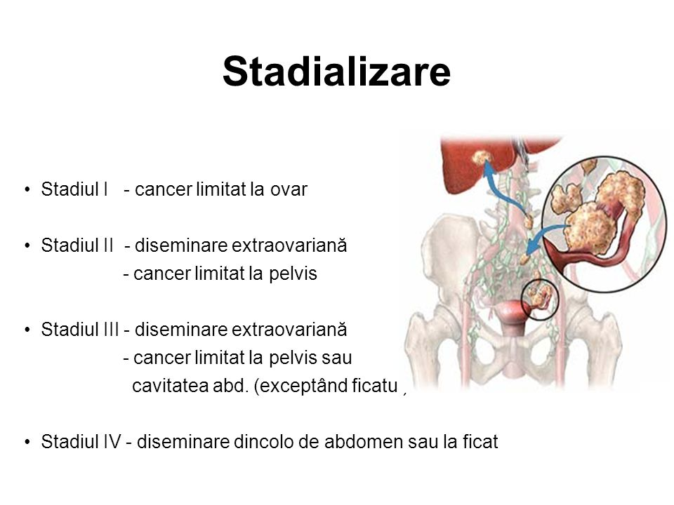 cancer limfatic stadiul 3