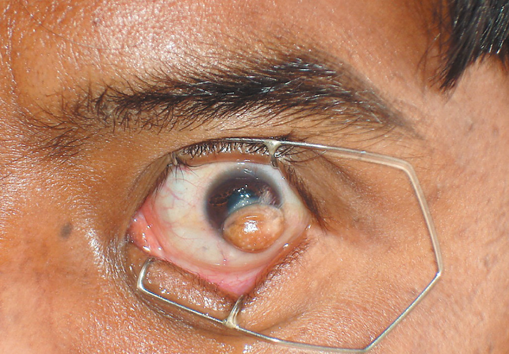 icd 10 papilloma left lower lid)