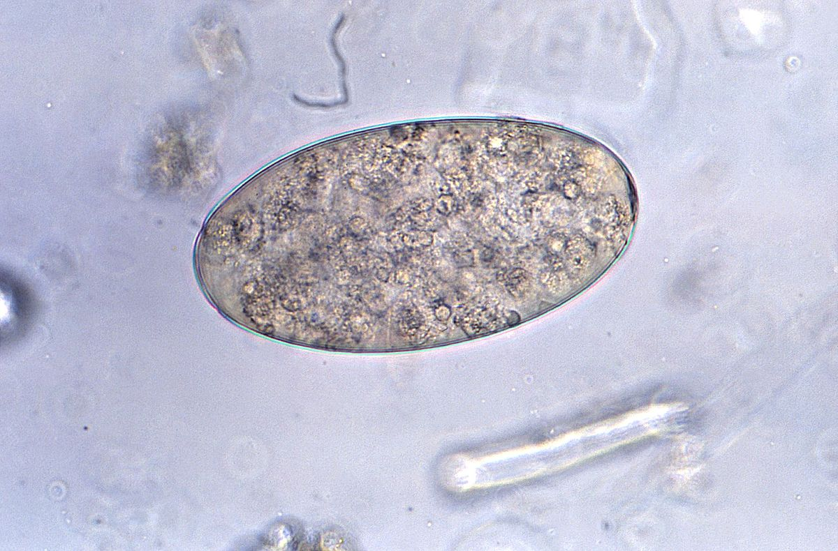 enterobius vermicularis in bisaya