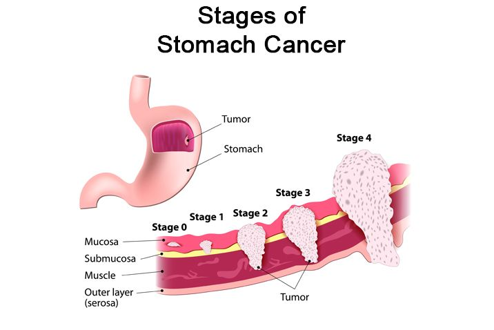 abdominal cancer tumor