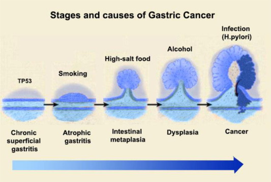 Research Focus on Gastric Cancer: Dorothy C. Cardinni · | Books Express