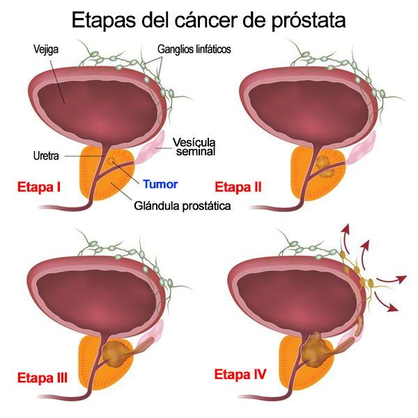 cancer de prostata etapa 4)