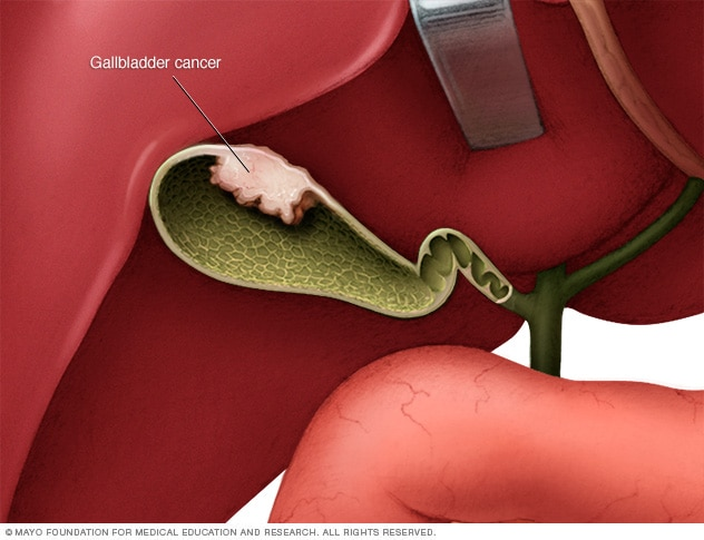 aggressive cancer of the gallbladder