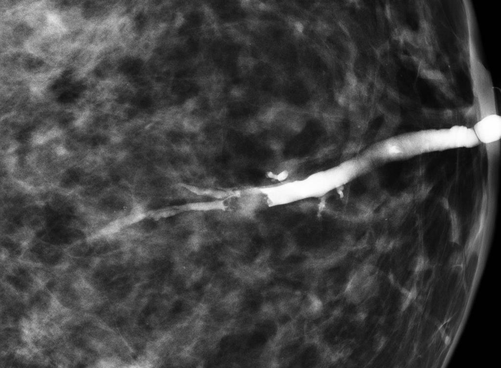 Intraductal papilloma ductogram. REVIEW-URI