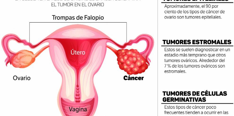 que es cancer de ovario