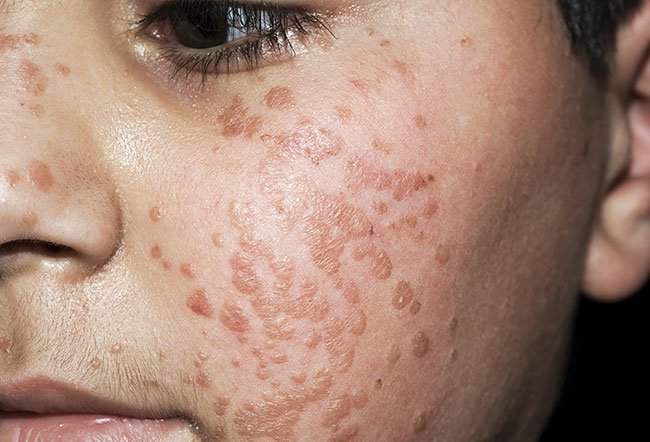 warts on hands all of a sudden