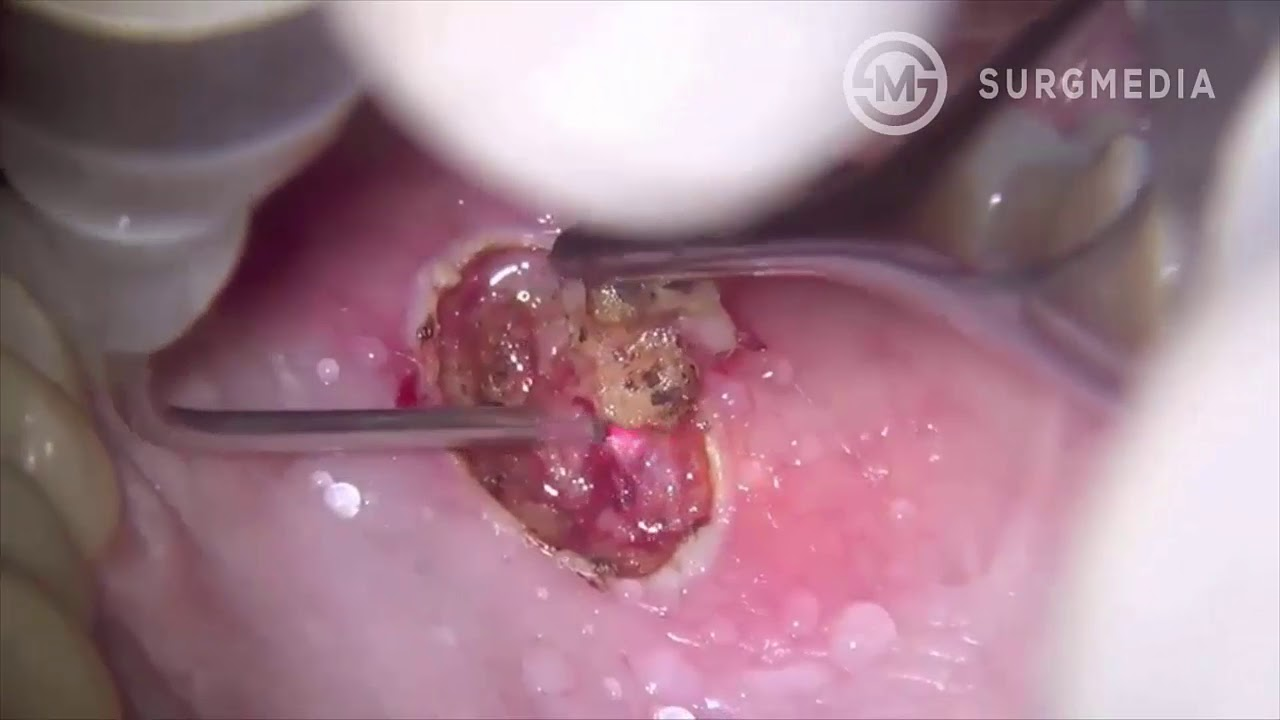 removing papilloma from tongue