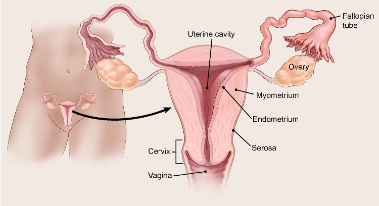 Extinderea venelor endometriale - Cancer uterine lining thickness