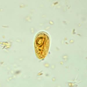 tratament giardia cdc