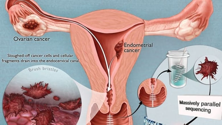 Cancerul endometrial - simptome, factori de risc, diagnostic si tratament