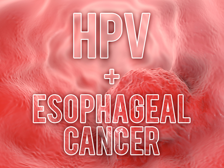 esophageal cancer hpv)
