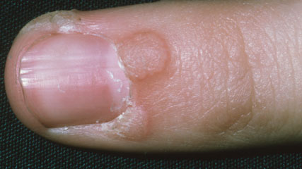 hpv warts finger)