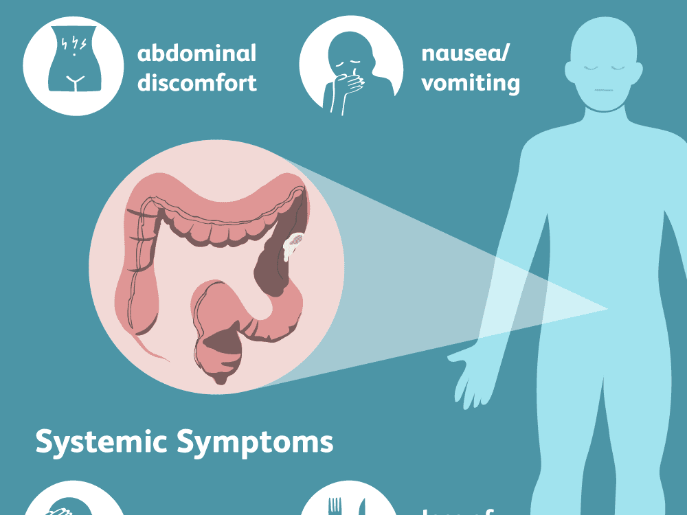Cancer in rectal area symptoms