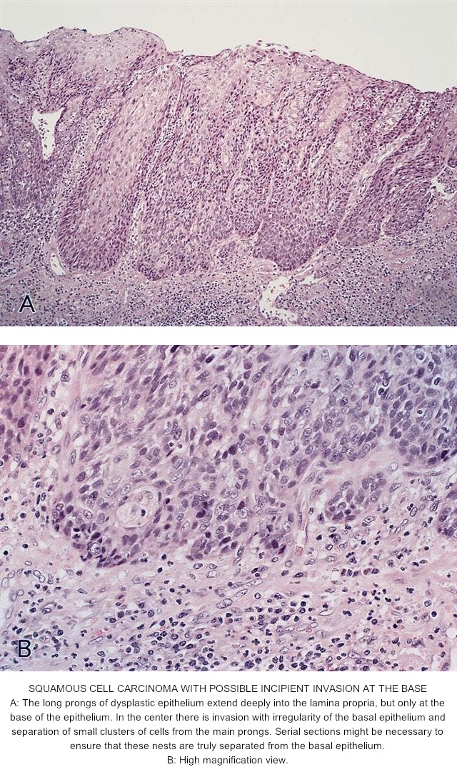 hpv esophagus pathology outlines)