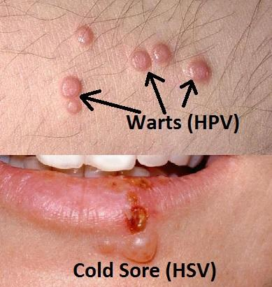 hpv and herpes the same
