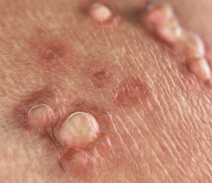 hpv homme symptome cancer stromale