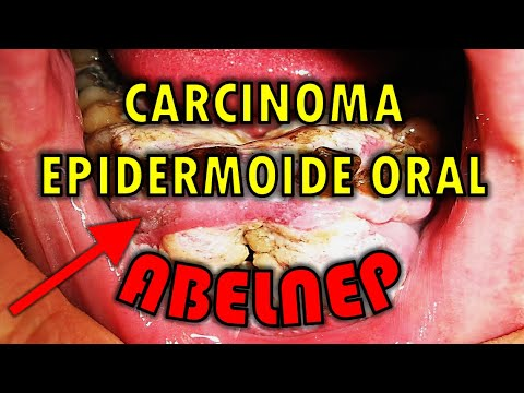 cancer epidermoide bucal