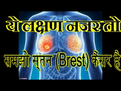 metastatic cancer meaning in marathi papillon zeugma wifi