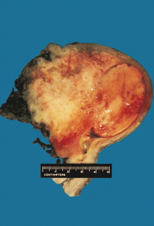 cancer endometrial maligno)