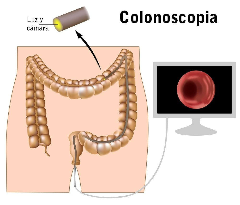 cancer la colon primele simptome)