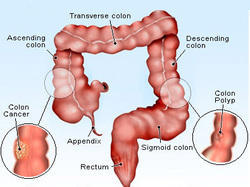 cancer on tip of appendix