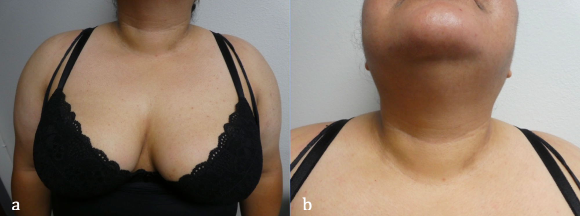 confluent and reticulated papillomatosis neck)