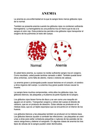 anemia que produce