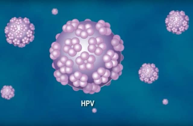 hpv cancer homme)