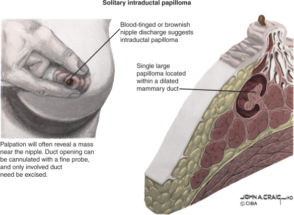 What causes ductal papilloma