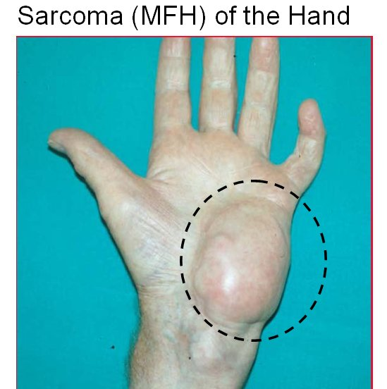 Sarcoma cancer by age, Warts on hands disappear